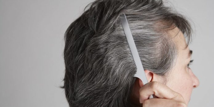 Graying of Hair Linked to Dysregulated Immune System