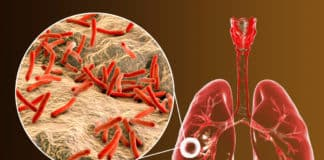 Indian Researchers Discover Potential Drugs Against Tuberculosis
