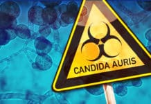 Candida auris Outbreak - A Serious Global Health Threat