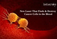 New Laser That Finds & Destroy Cancer Cells in the Blood