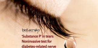 Markers in tears detect diabetes