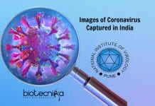 Images Of Coronavirus Captured In India