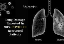 lung damage in COVID-19 recovered