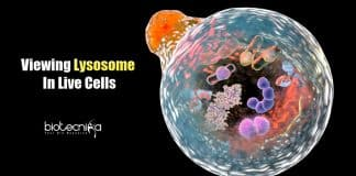 Optical Imaging Technique for Lysosome