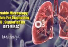 TB diagnosing portable microscopy