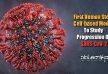 First human stem cell-based model